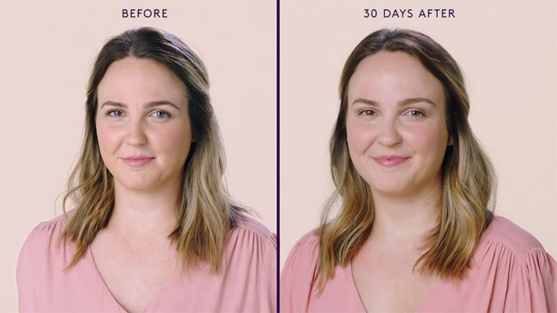 Botox Before and After of Woman's Face