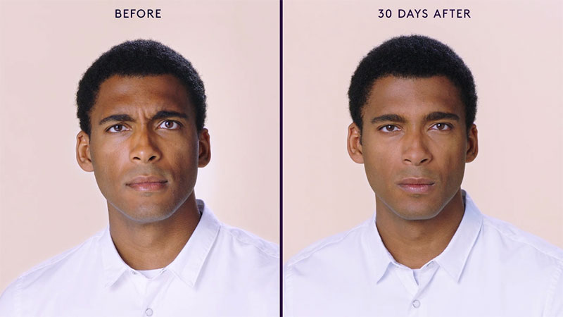 Botox Before and After of Male's Face