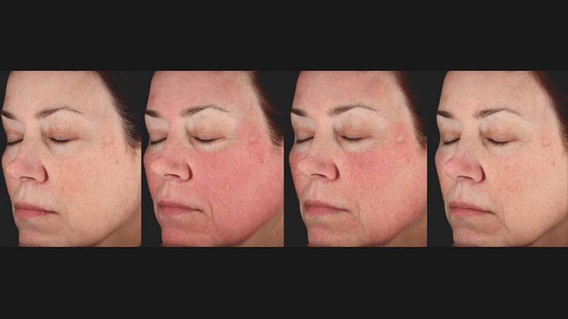 Before & After Picosure Face