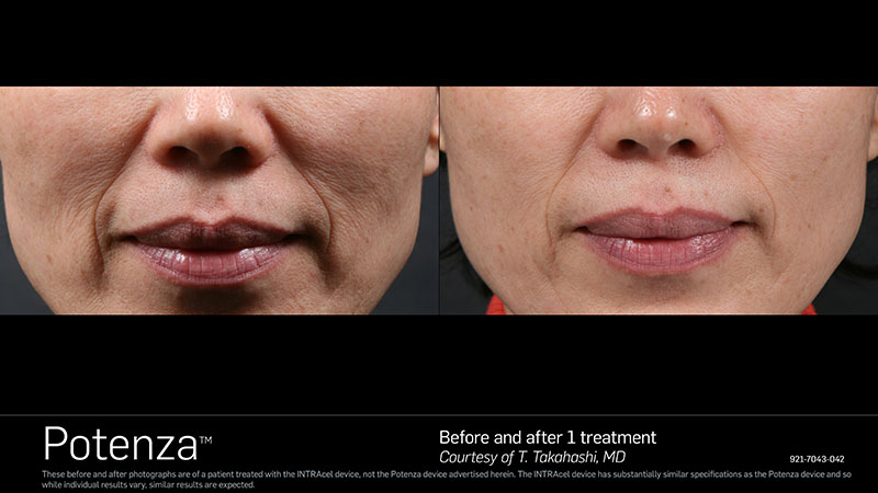 Before & After Potenza nose and mouth