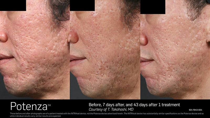 Before & After Potenza Side profile of Face